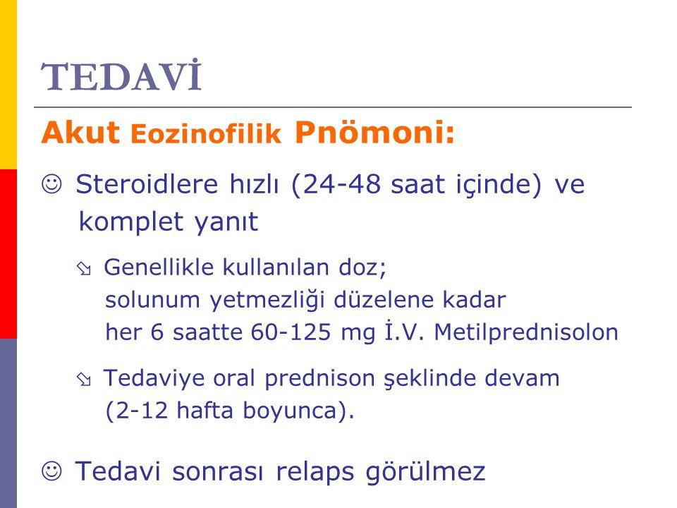TEDAVİ Akut Eozinofilik Pnömoni: