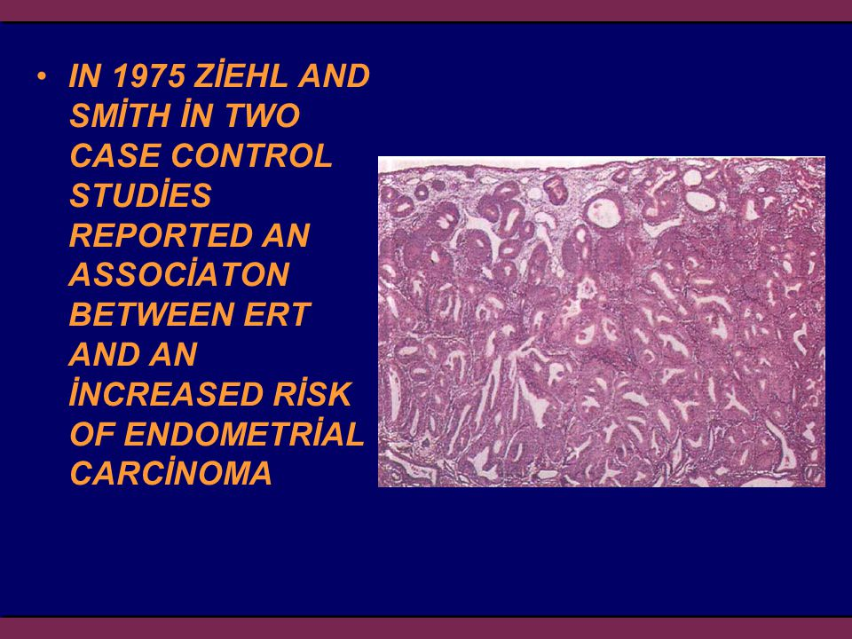 IN 1975 ZİEHL AND SMİTH İN TWO CASE CONTROL STUDİES REPORTED AN ASSOCİATON BETWEEN ERT AND AN İNCREASED RİSK OF ENDOMETRİAL CARCİNOMA