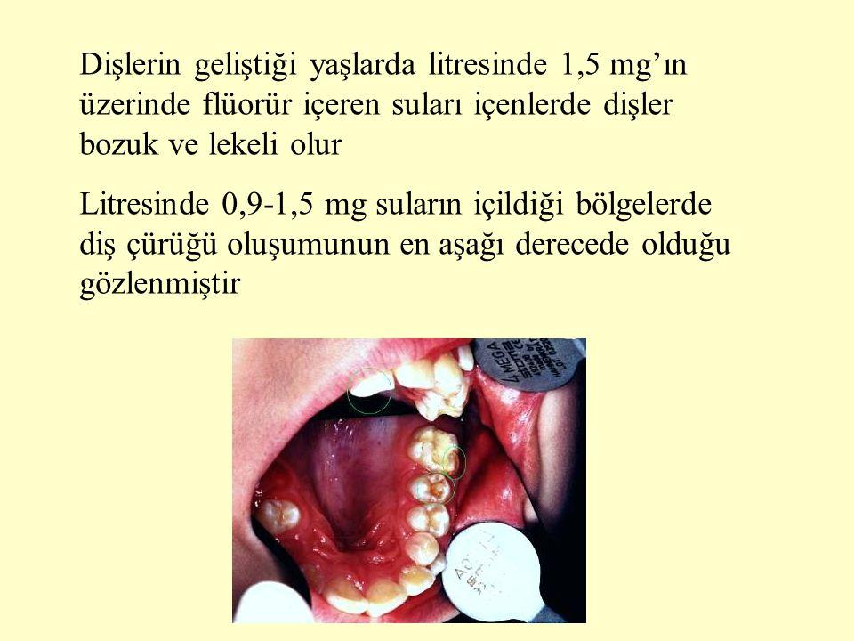 Dişlerin geliştiği yaşlarda litresinde 1,5 mg'ın üzerinde flüorür içeren suları içenlerde dişler bozuk ve lekeli olur