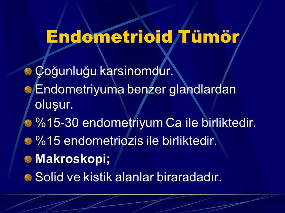 Endometrioid Tümör Çoğunluğu karsinomdur.