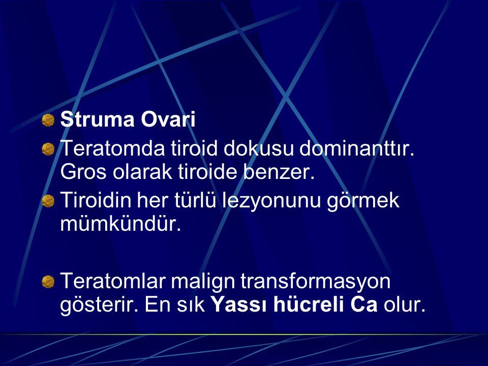 Struma Ovari Teratomda tiroid dokusu dominanttır. Gros olarak tiroide benzer. Tiroidin her türlü lezyonunu görmek mümkündür.