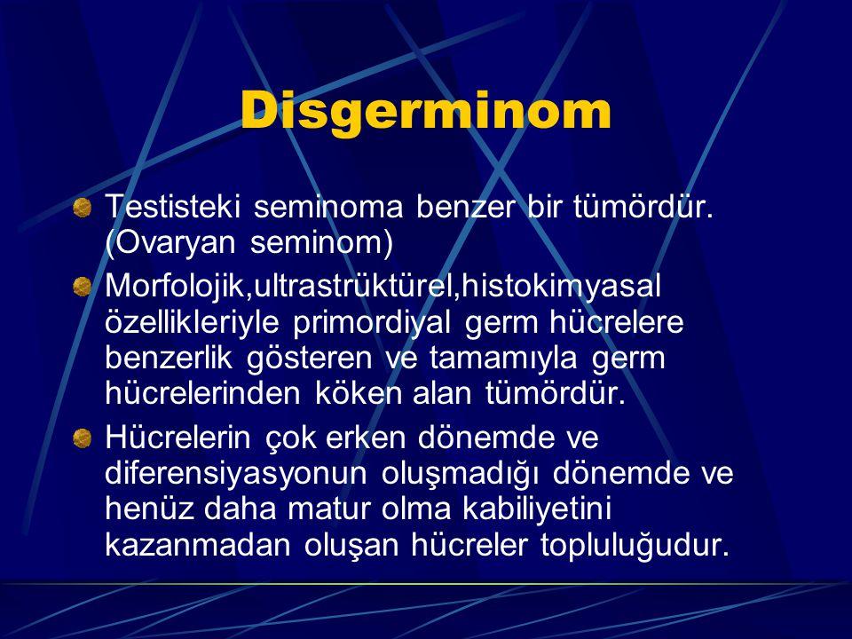Disgerminom Testisteki seminoma benzer bir tümördür. (Ovaryan seminom)