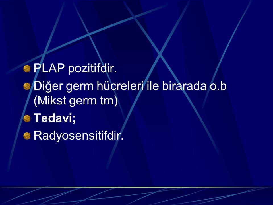 PLAP pozitifdir. Diğer germ hücreleri ile birarada o.b (Mikst germ tm) Tedavi; Radyosensitifdir.