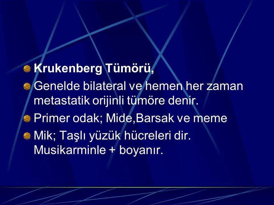 Krukenberg Tümörü, Genelde bilateral ve hemen her zaman metastatik orijinli tümöre denir. Primer odak; Mide,Barsak ve meme.