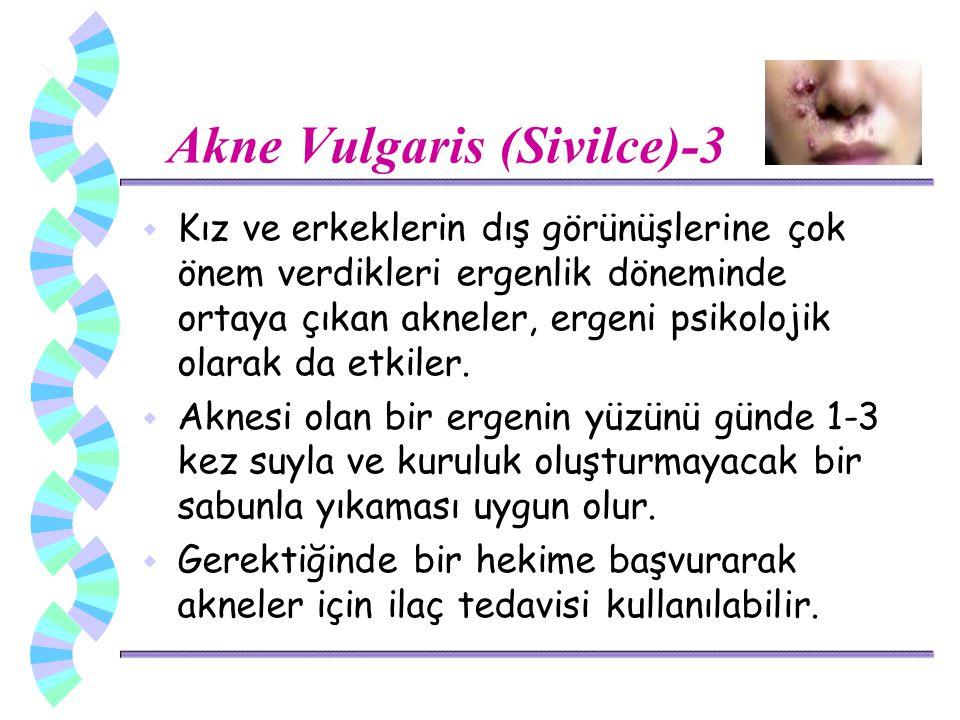 Akne Vulgaris (Sivilce)-3