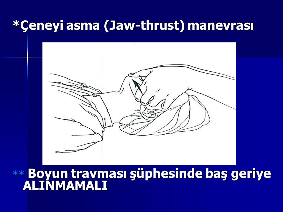 *Çeneyi asma (Jaw-thrust) manevrası