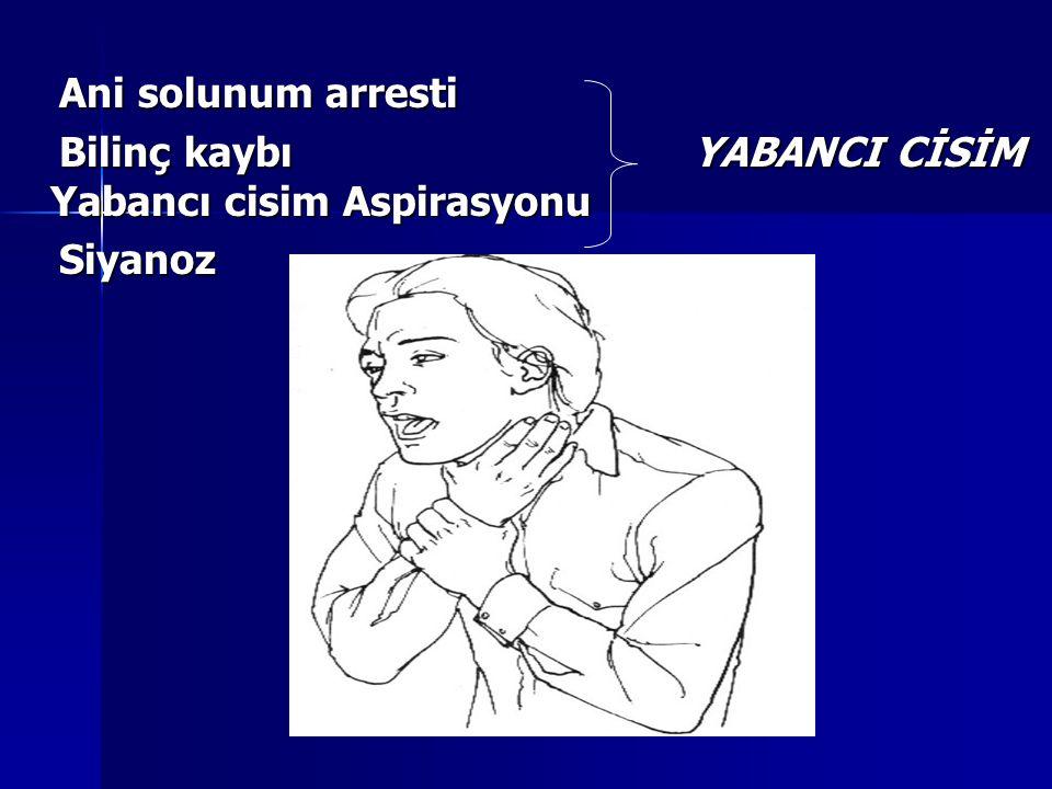 Ani solunum arresti Bilinç kaybı YABANCI CİSİM Yabancı cisim Aspirasyonu.