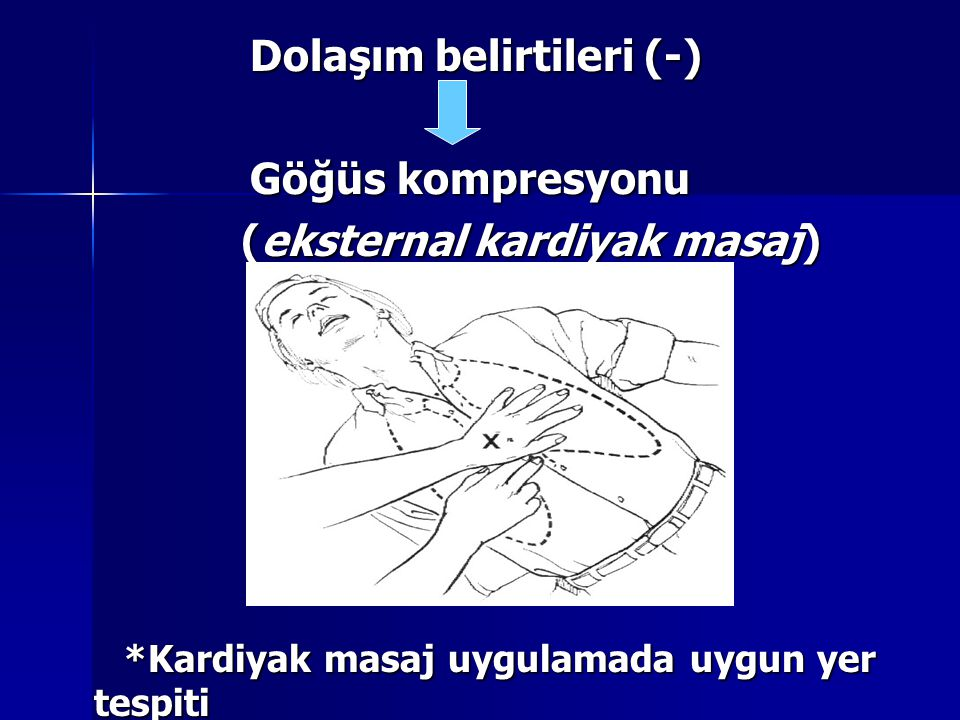 Dolaşım belirtileri (-) Göğüs kompresyonu (eksternal kardiyak masaj)