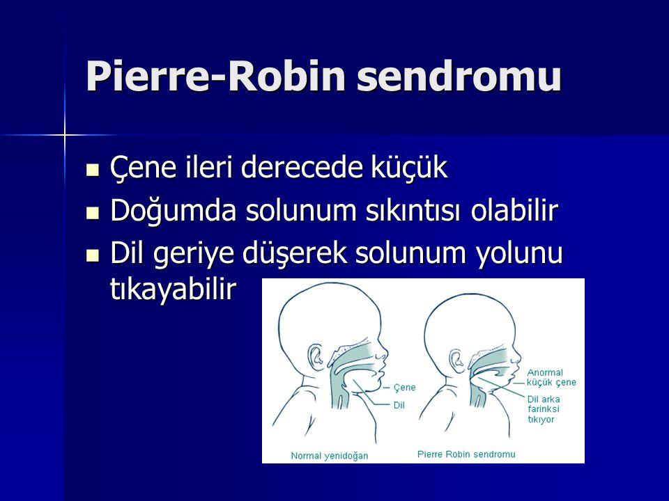 Pierre-Robin sendromu