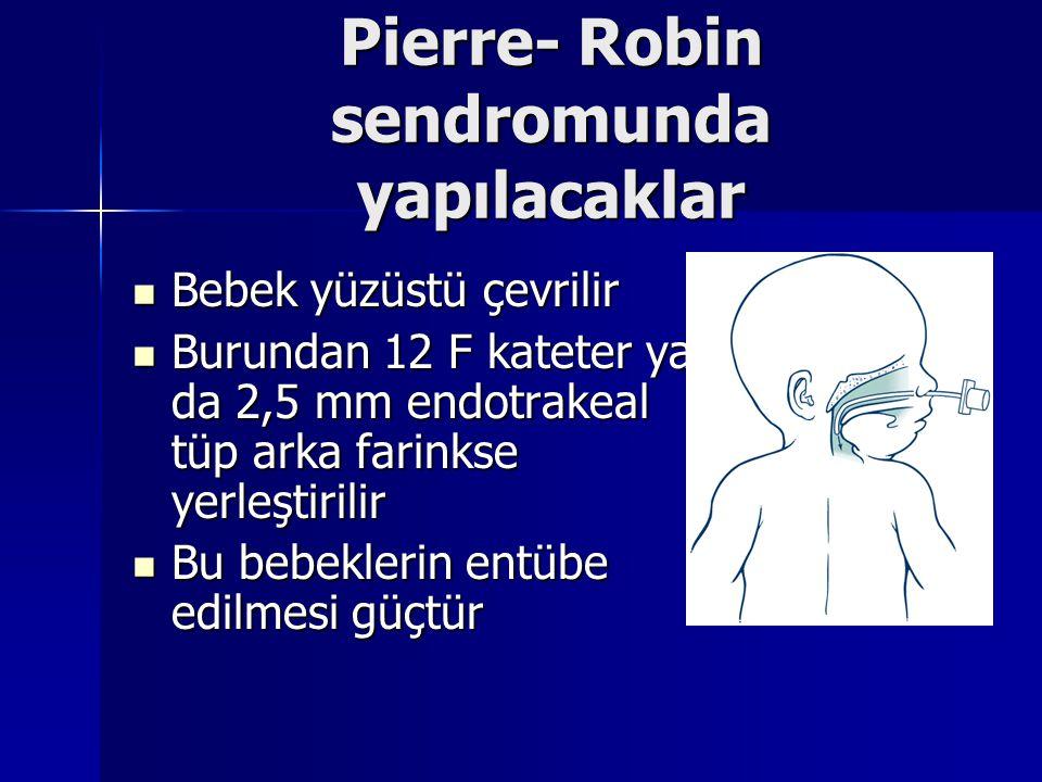 Pierre- Robin sendromunda yapılacaklar