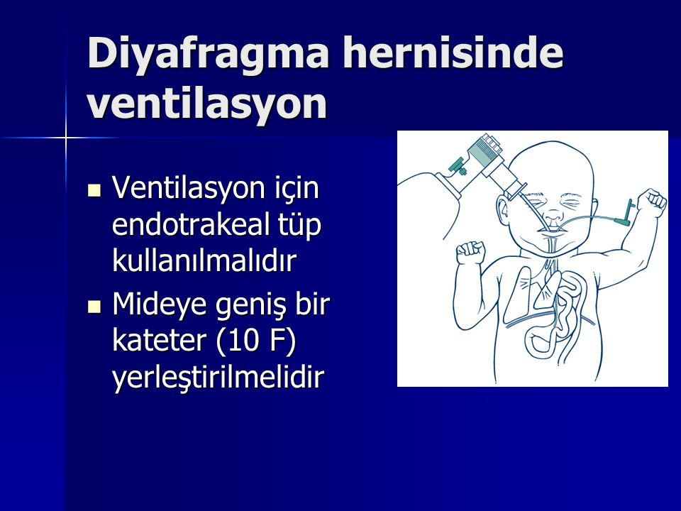 Diyafragma hernisinde ventilasyon