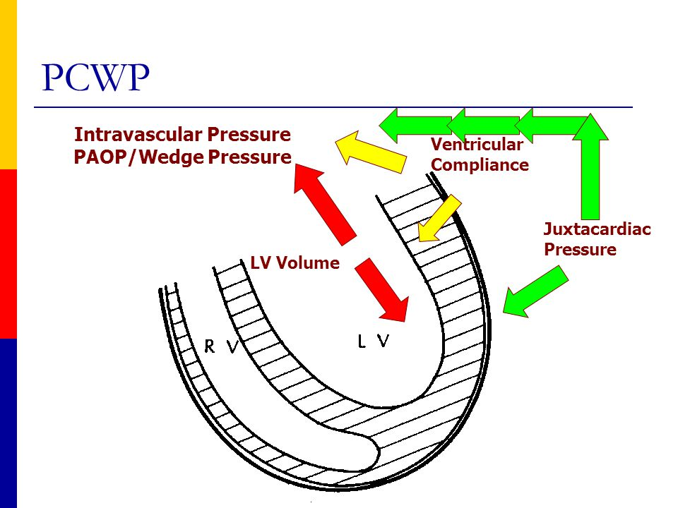 Intravascular Pressure PAOP/Wedge Pressure