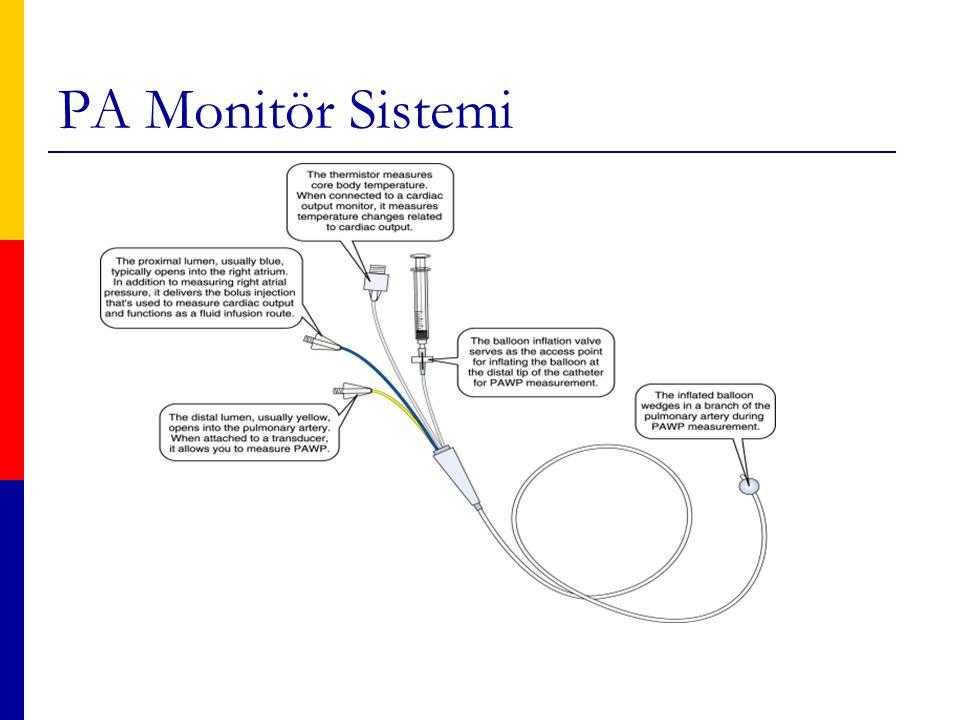 PA Monitör Sistemi