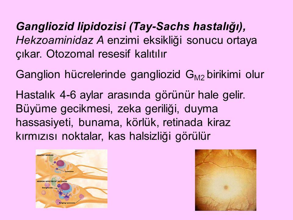 Gangliozid lipidozisi (Tay-Sachs hastalığı), Hekzoaminidaz A enzimi eksikliği sonucu ortaya çıkar. Otozomal resesif kalıtılır