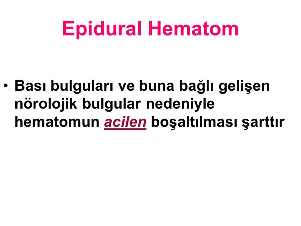 Epidural Hematom Bası bulguları ve buna bağlı gelişen nörolojik bulgular nedeniyle hematomun acilen boşaltılması şarttır.