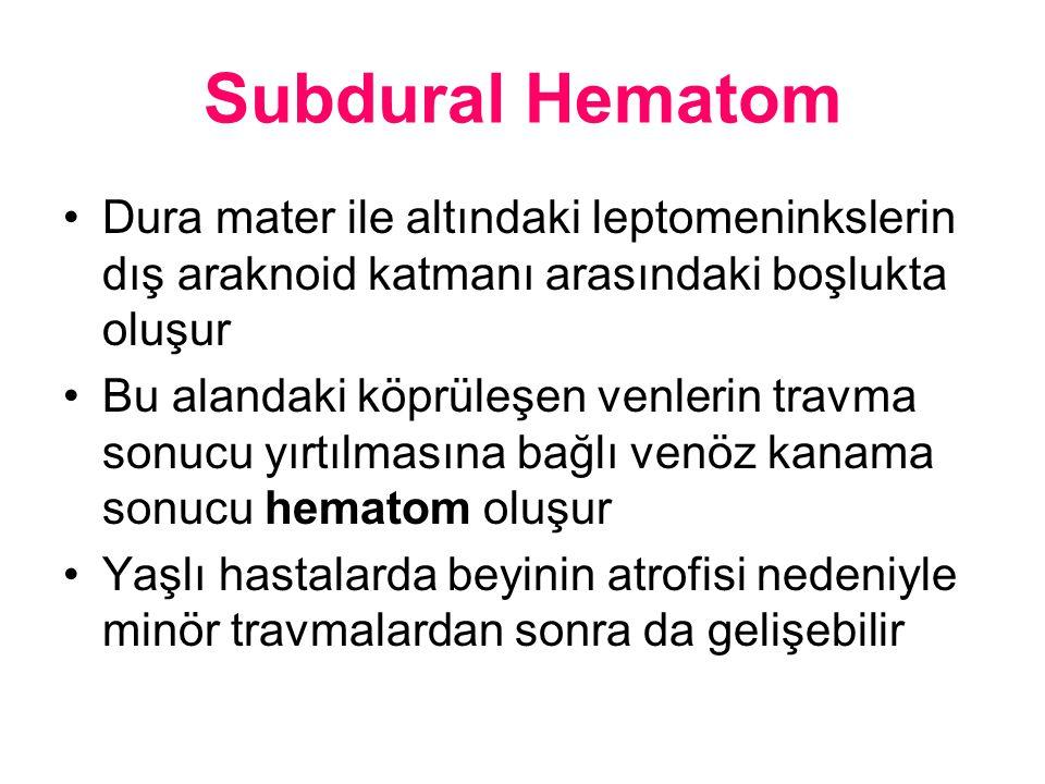 Subdural Hematom Dura mater ile altındaki leptomeninkslerin dış araknoid katmanı arasındaki boşlukta oluşur.