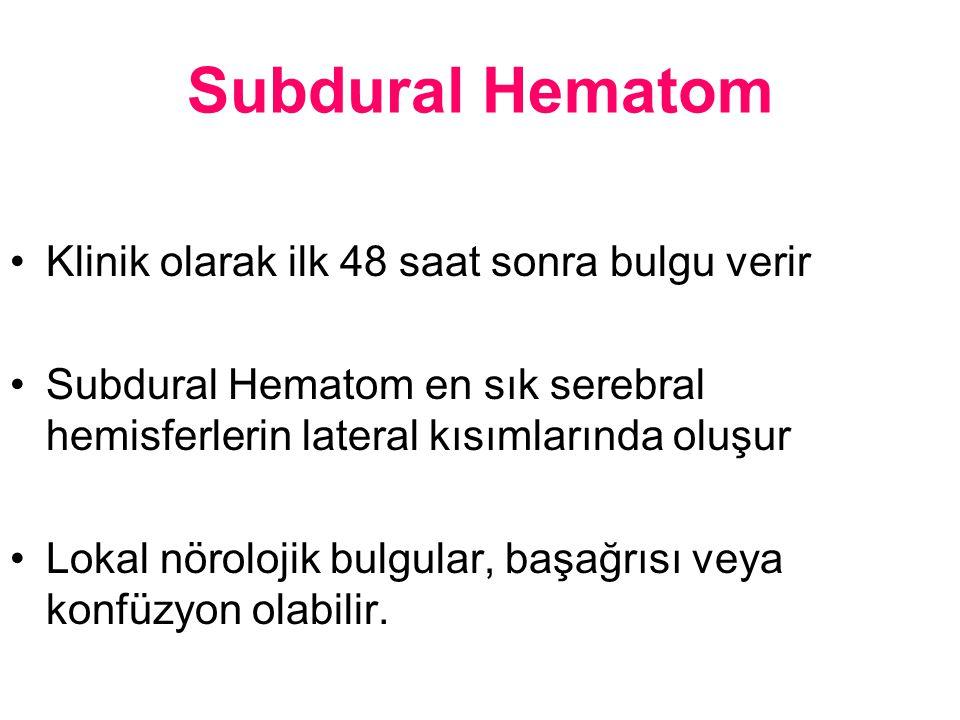 Subdural Hematom Klinik olarak ilk 48 saat sonra bulgu verir