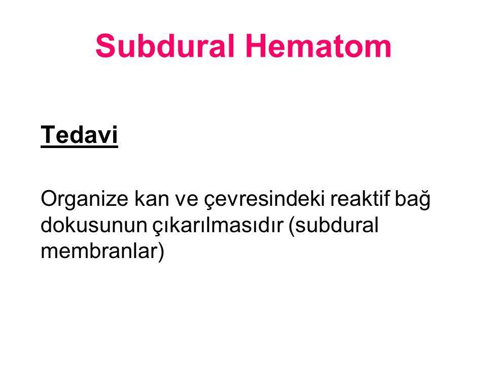 Subdural Hematom Tedavi