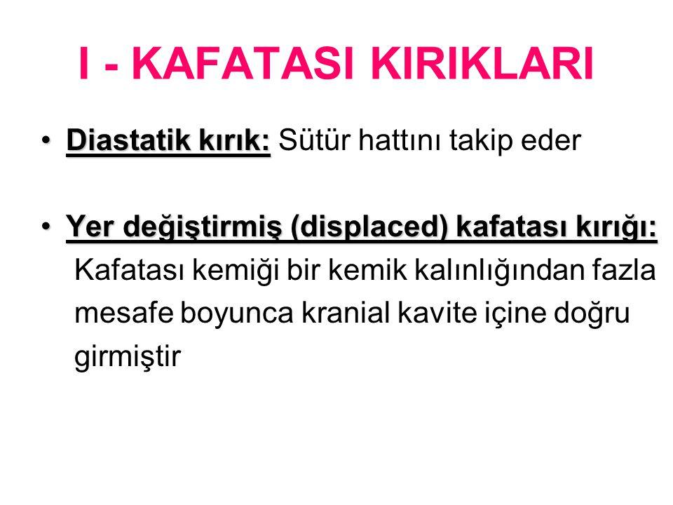 I - KAFATASI KIRIKLARI Diastatik kırık: Sütür hattını takip eder