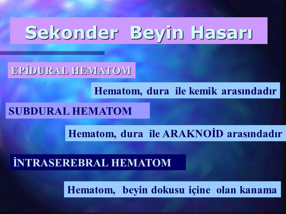 Sekonder Beyin Hasarı EPİDURAL HEMATOM