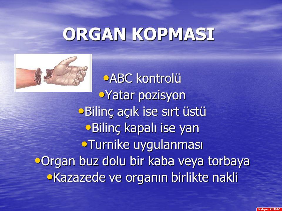 ORGAN KOPMASI ABC kontrolü Yatar pozisyon Bilinç açık ise sırt üstü