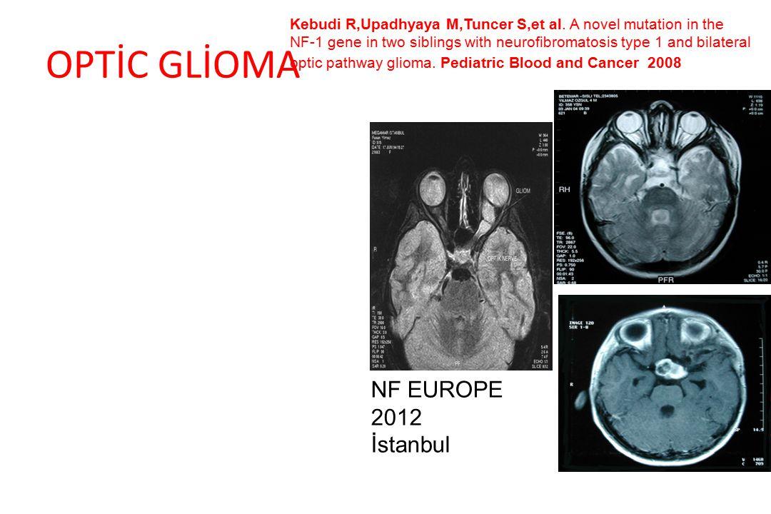 OPTİC GLİOMA NF EUROPE 2012 İstanbul