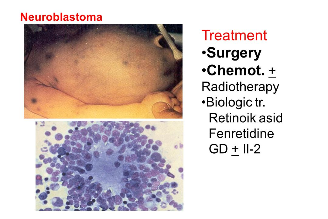 Treatment Surgery Chemot. + Radiotherapy Biologic tr. Retinoik asid