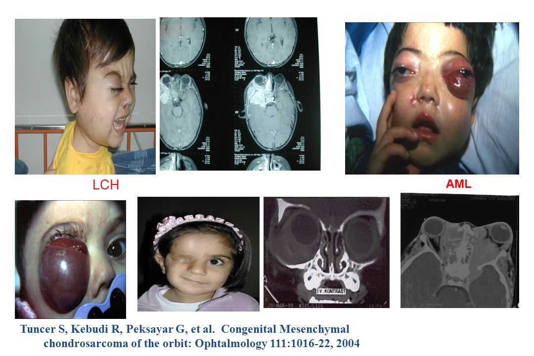 LCH AML. Tuncer S, Kebudi R, Peksayar G, et al.