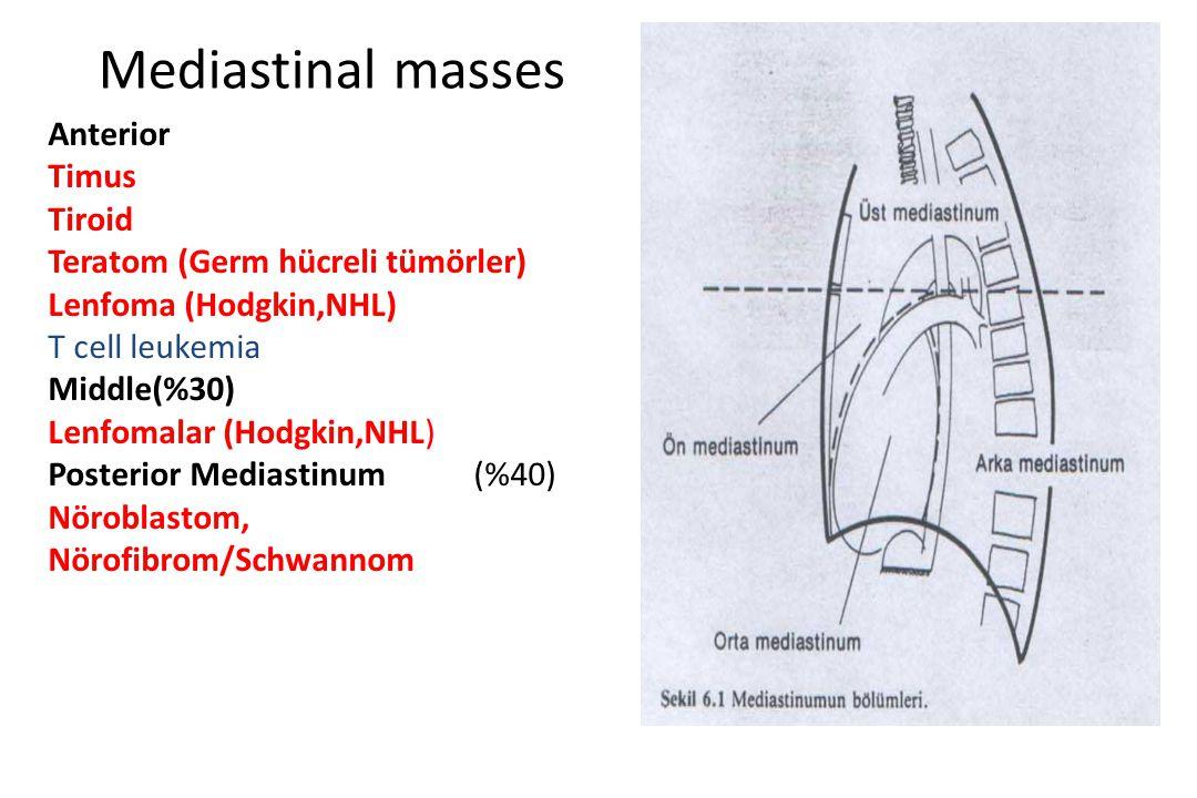 Mediastinal masses Anterior Timus Tiroid