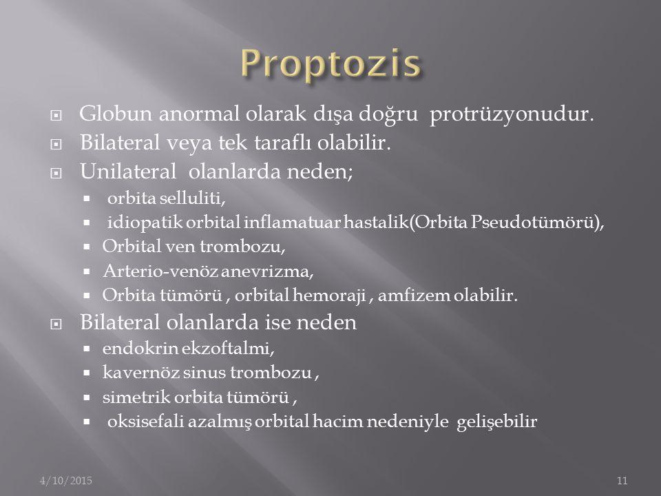 Proptozis Globun anormal olarak dışa doğru protrüzyonudur.