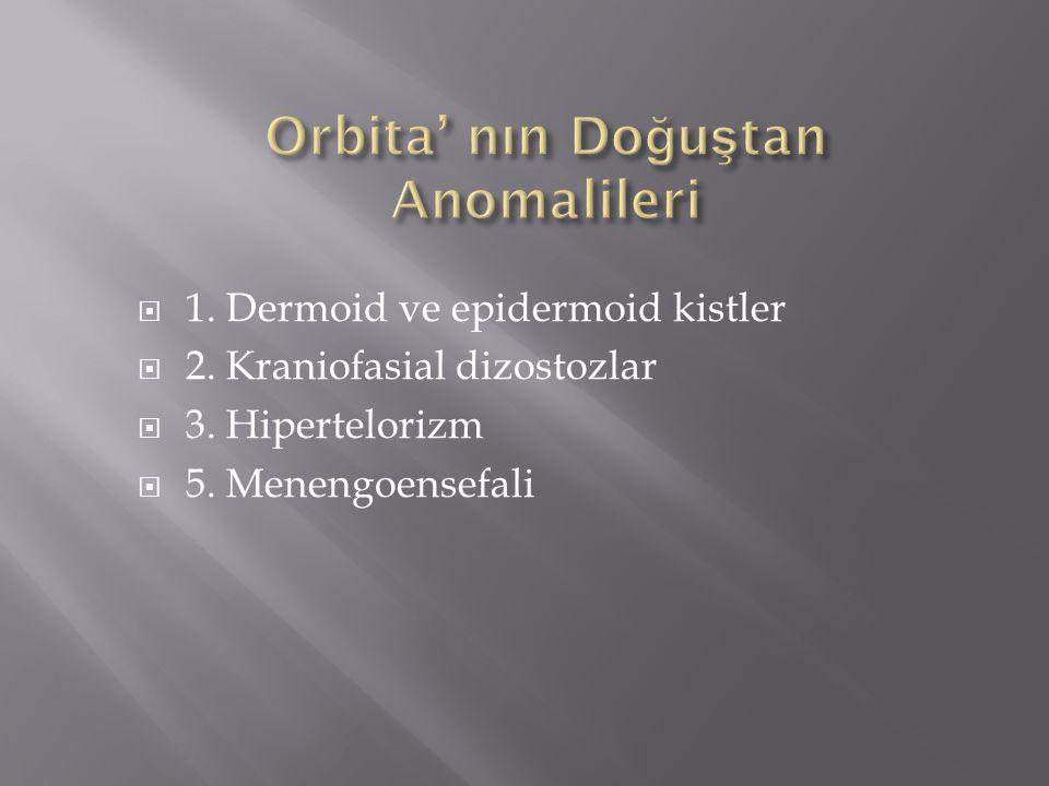 Orbita' nın Doğuştan Anomalileri