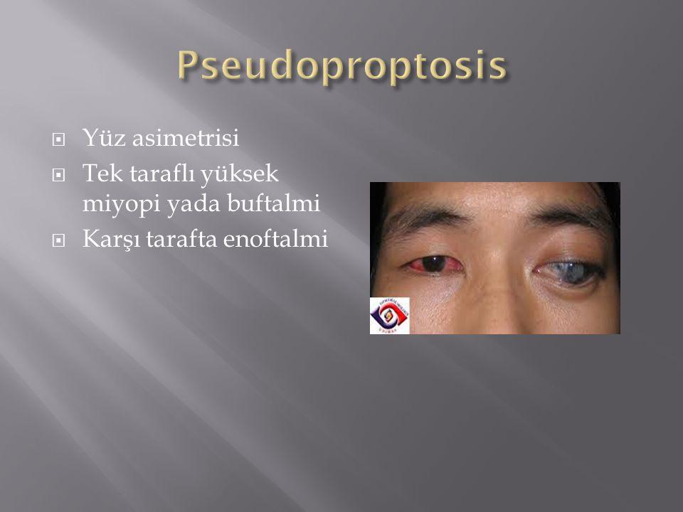 Pseudoproptosis Yüz asimetrisi Tek taraflı yüksek miyopi yada buftalmi