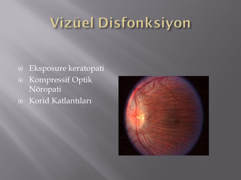 Vizüel Disfonksiyon Eksposure keratopati Kompressif Optik Nöropati