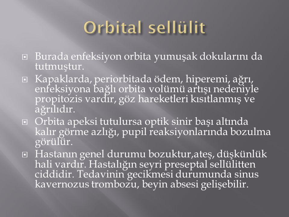Orbital sellülit Burada enfeksiyon orbita yumuşak dokularını da tutmuştur.