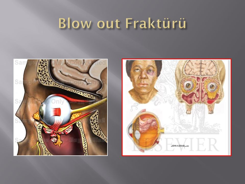 Blow out Fraktürü