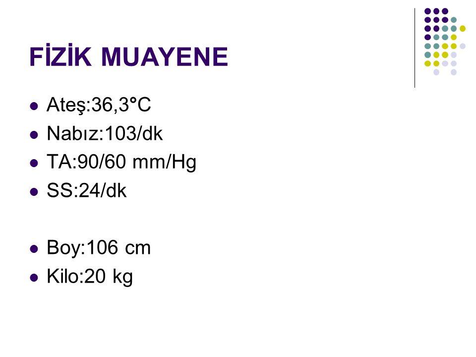 FİZİK MUAYENE Ateş:36,3°C Nabız:103/dk TA:90/60 mm/Hg SS:24/dk