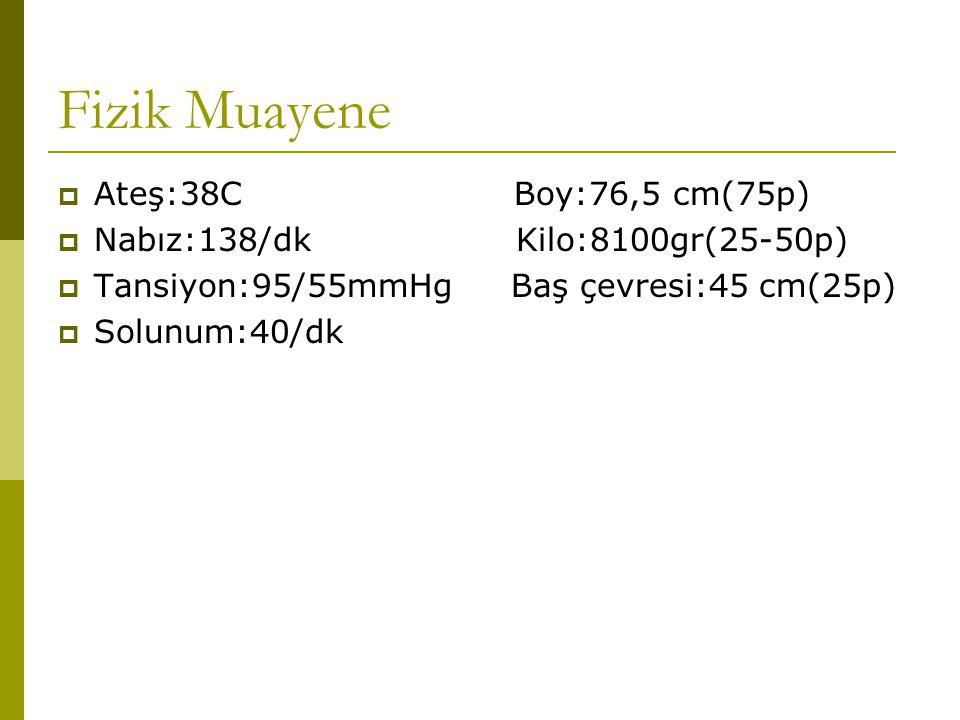 Fizik Muayene Ateş:38C Boy:76,5 cm(75p)