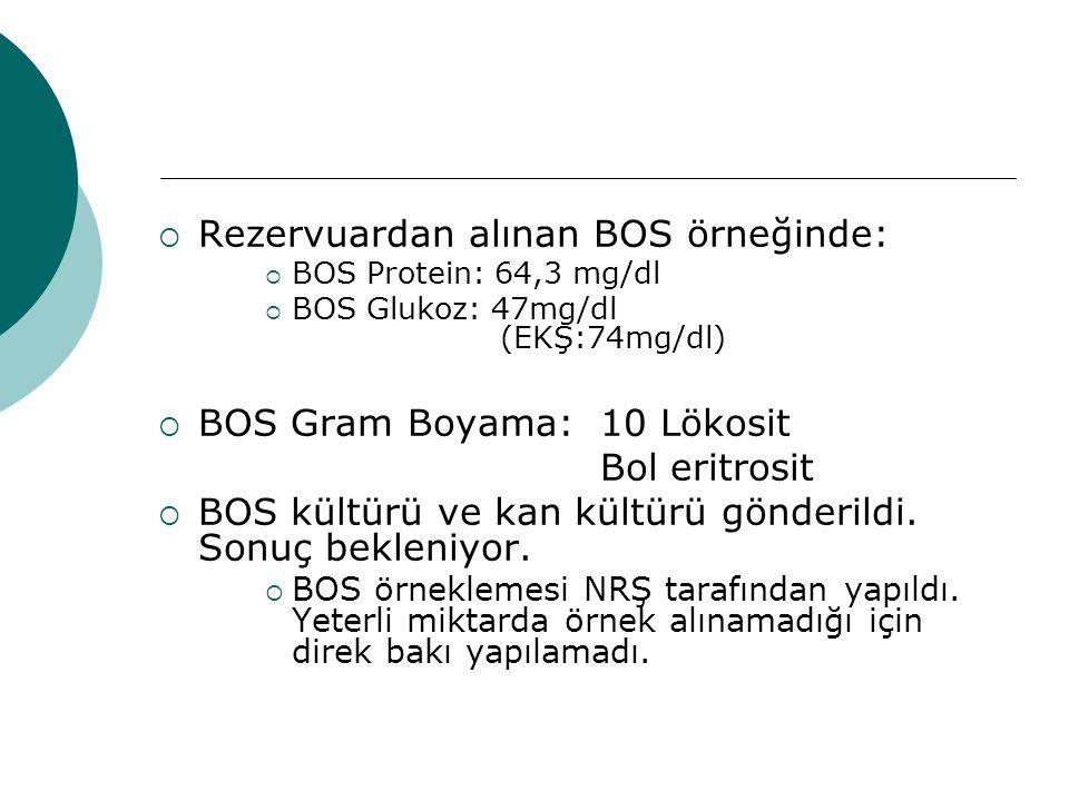 Rezervuardan alınan BOS örneğinde: