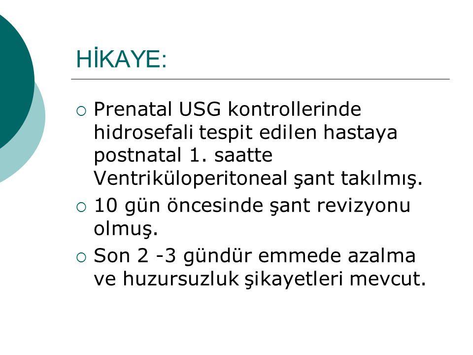 HİKAYE: Prenatal USG kontrollerinde hidrosefali tespit edilen hastaya postnatal 1. saatte Ventriküloperitoneal şant takılmış.