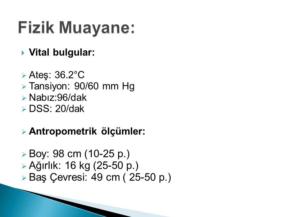 Fizik Muayane: Boy: 98 cm (10-25 p.) Ağırlık: 16 kg (25-50 p.)