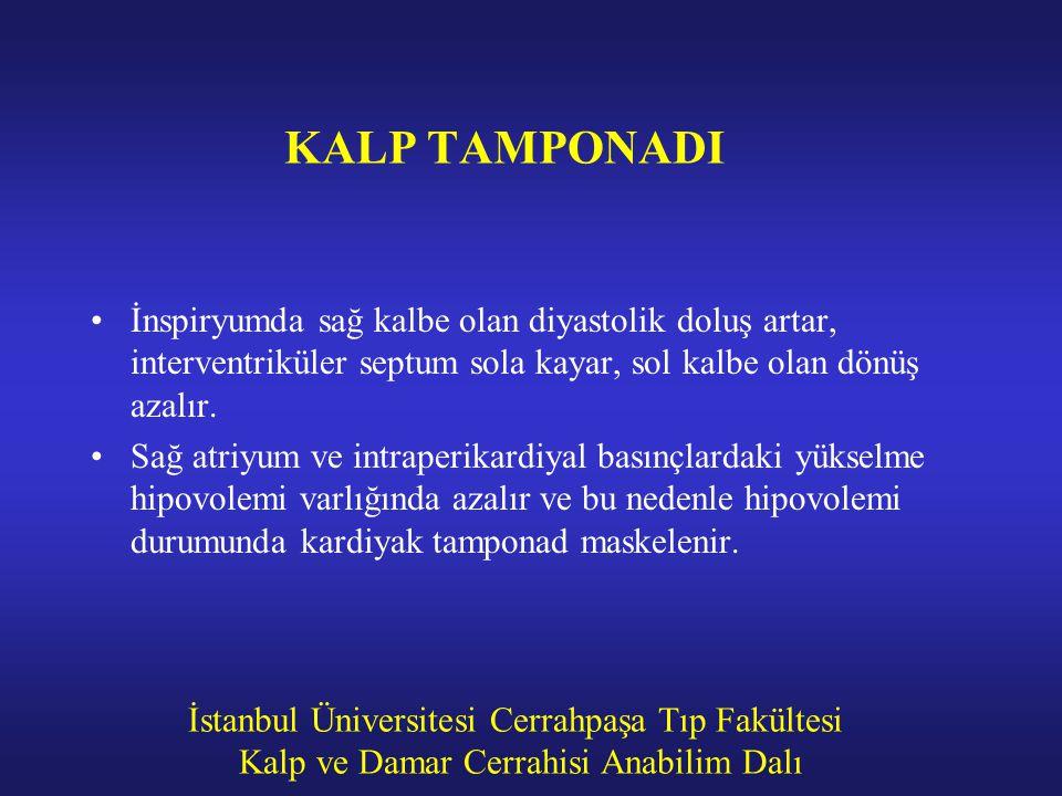 KALP TAMPONADI İnspiryumda sağ kalbe olan diyastolik doluş artar, interventriküler septum sola kayar, sol kalbe olan dönüş azalır.