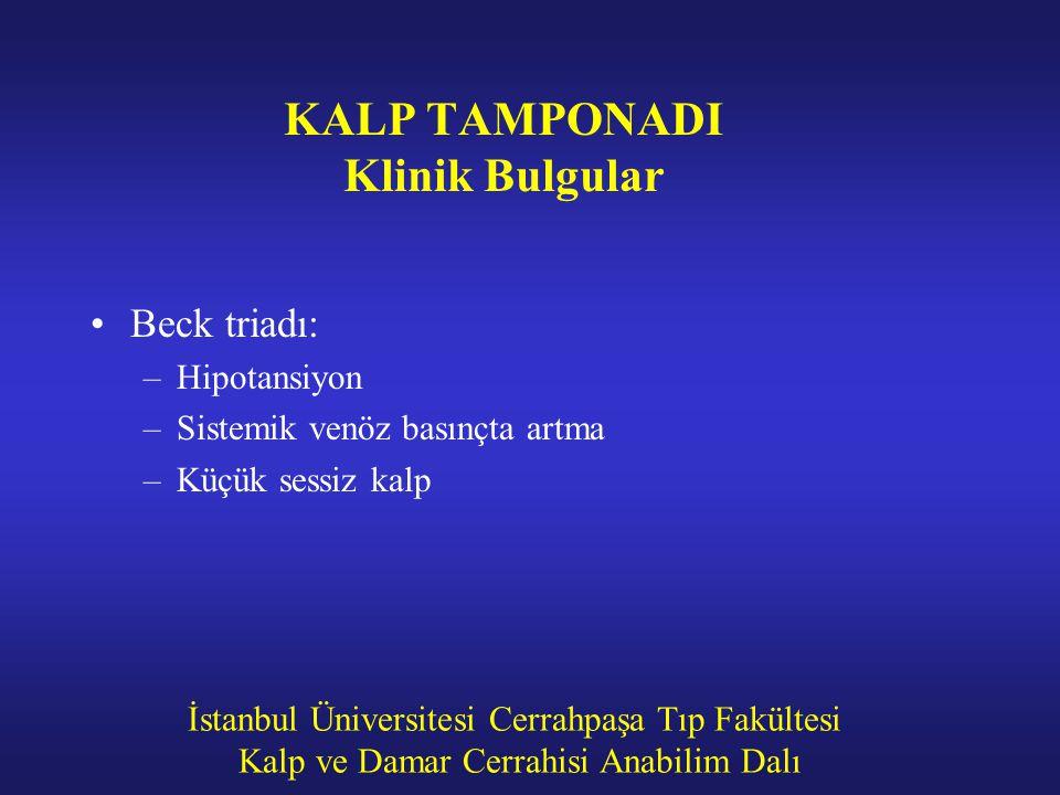 KALP TAMPONADI Klinik Bulgular