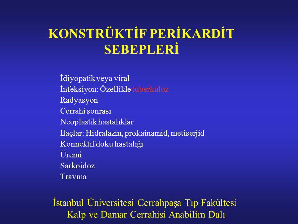 KONSTRÜKTİF PERİKARDİT SEBEPLERİ