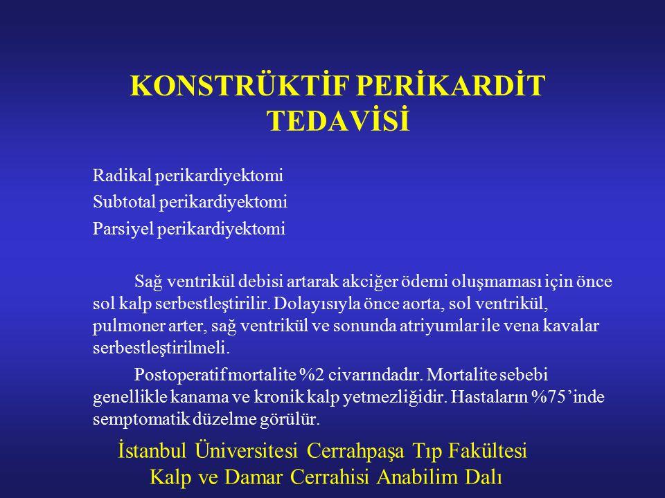 KONSTRÜKTİF PERİKARDİT TEDAVİSİ
