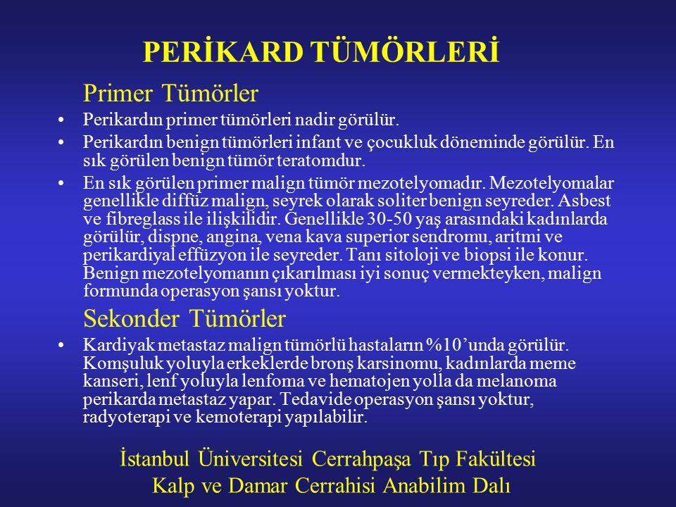 PERİKARD TÜMÖRLERİ Primer Tümörler Sekonder Tümörler