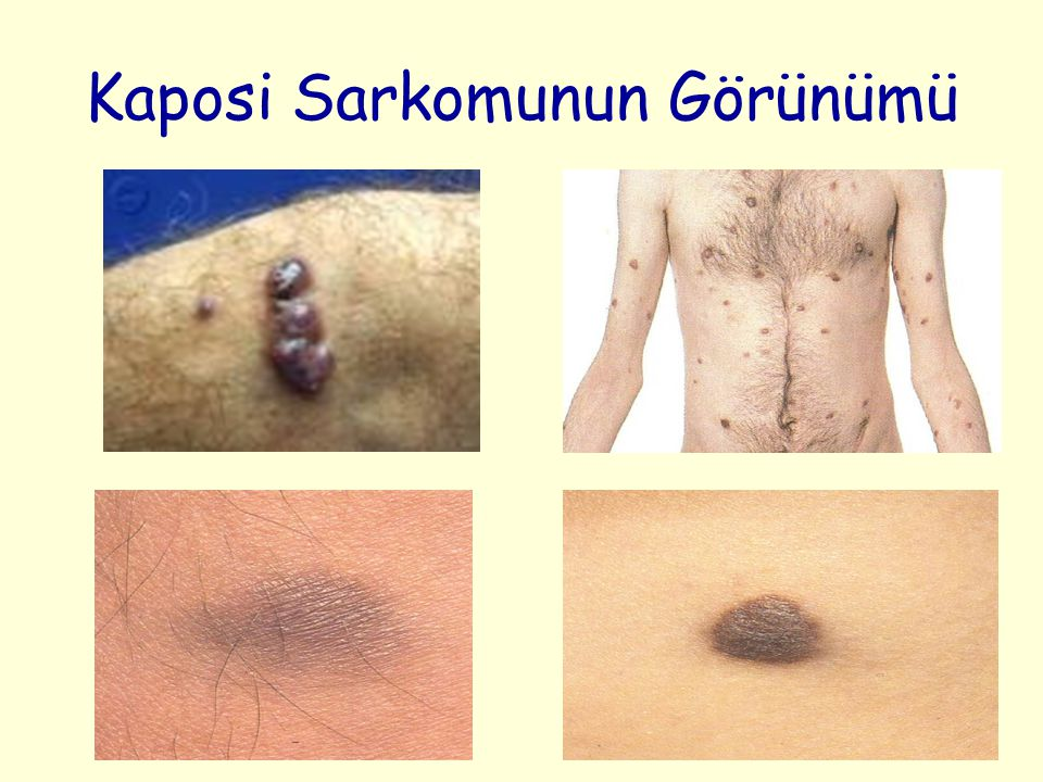 Kaposi Sarkomunun Görünümü