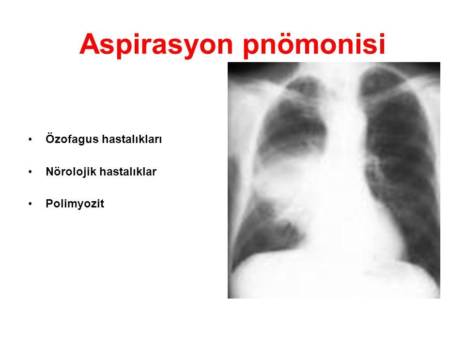 Aspirasyon pnömonisi Özofagus hastalıkları Nörolojik hastalıklar