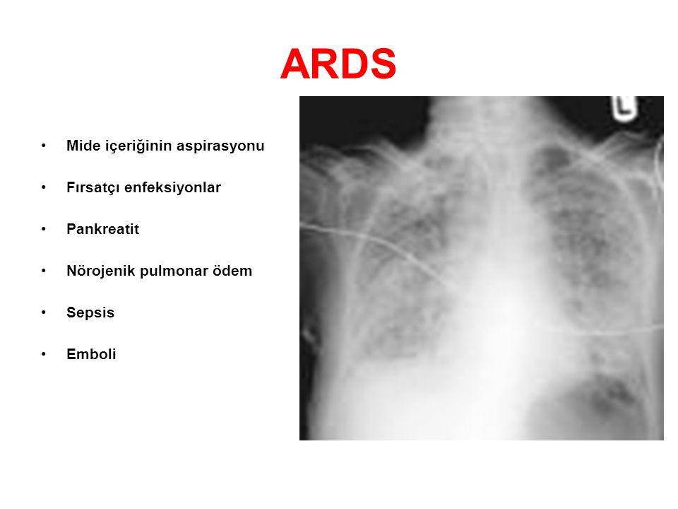 ARDS Mide içeriğinin aspirasyonu Fırsatçı enfeksiyonlar Pankreatit