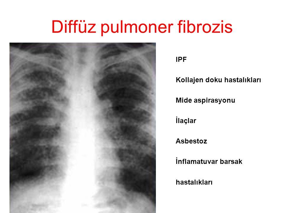 Diffüz pulmoner fibrozis