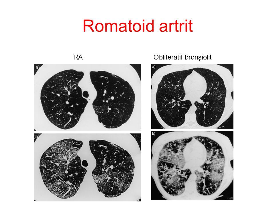 Romatoid artrit RA Obliteratif bronşiolit